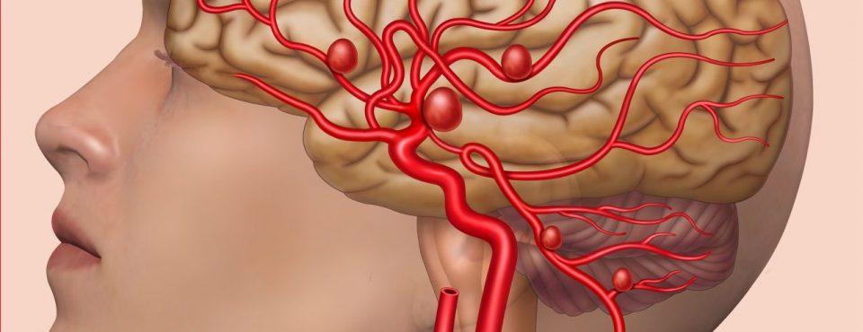 kisik v možgane, Zapper Zaper Zaperino