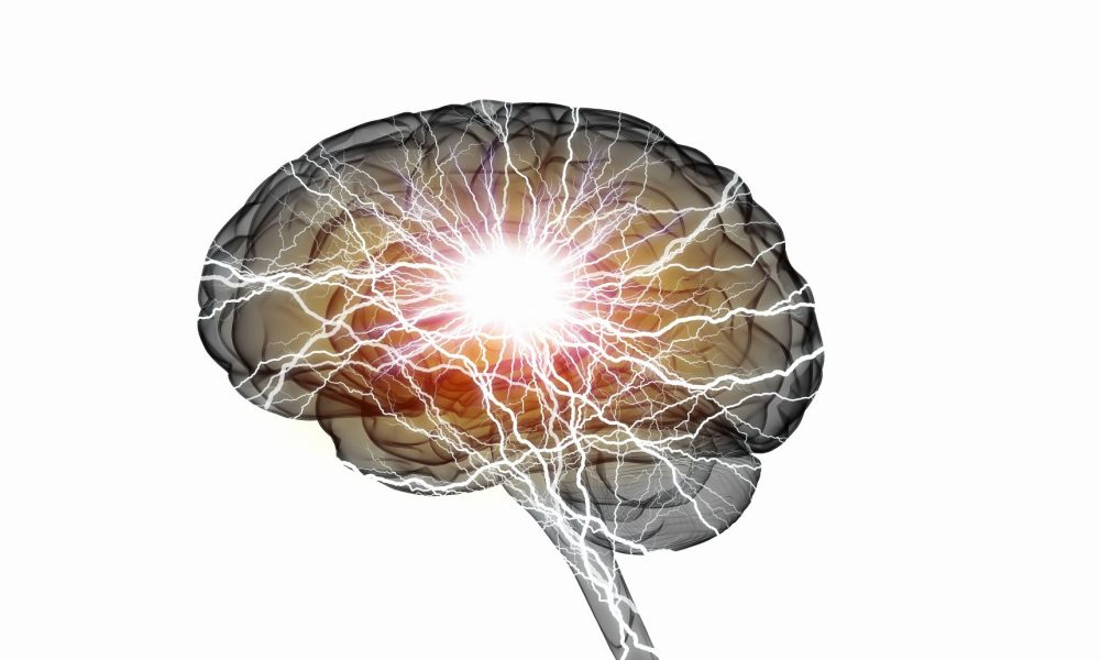 kisik za možgane