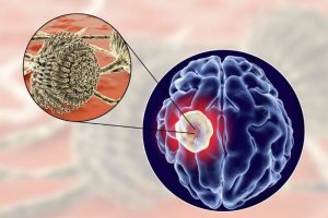 Aflatoksini in gliva v možganih Zapper zaper Zaperino terapija uniči parazite