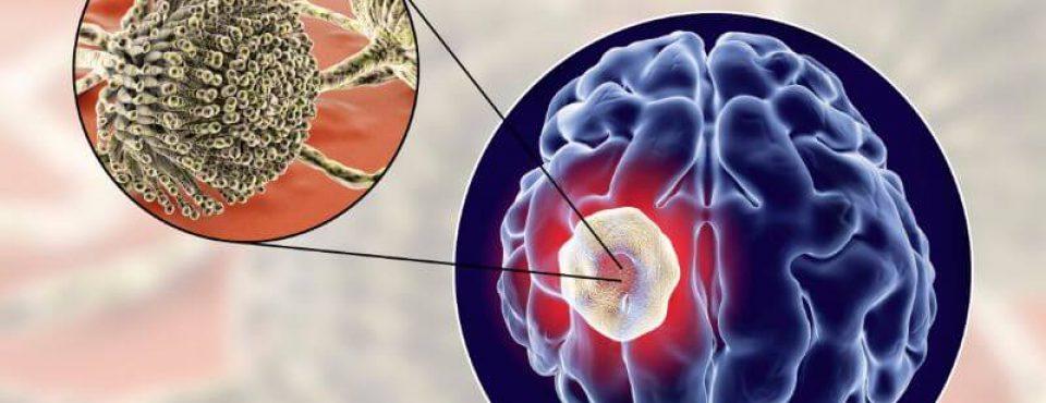 Proč z rakotvornimi AFLATOKSINI iz glive Aspergillus flavus