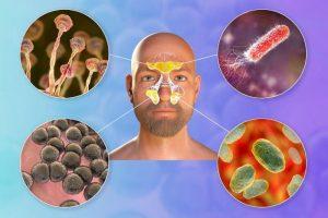 Sinusitis, aflatoksin in gliva Zapper Zaper Zaperino frekvence